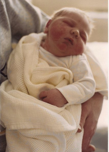 My 10 lb., 12 oz., son at two days old. He was the biggest baby in the nursery and the hospital did not have diapers to fit him.