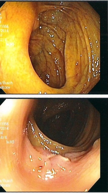 Two of six photos of my colon given to me after the procedure.