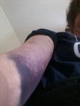 Audrey's arm deeppurple
