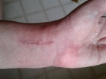 Wrist incision close-up